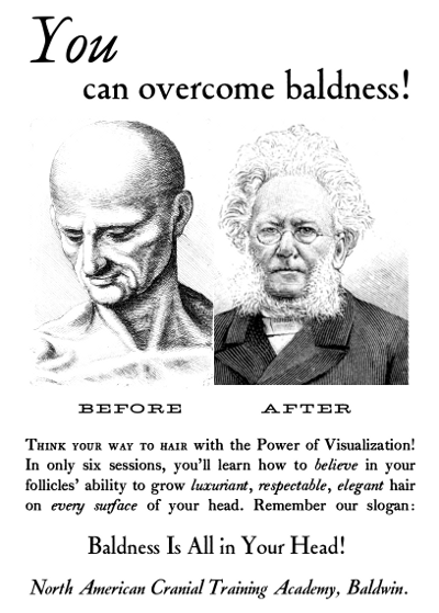 you-can-overcome-baldness
